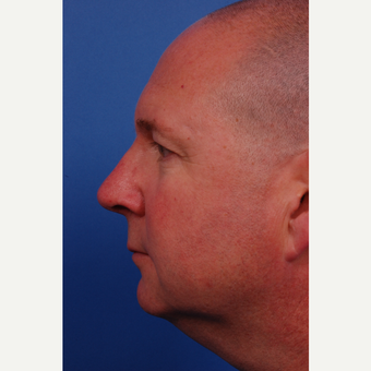 45-54 year old man treated with Rhinoplasty after 3180145