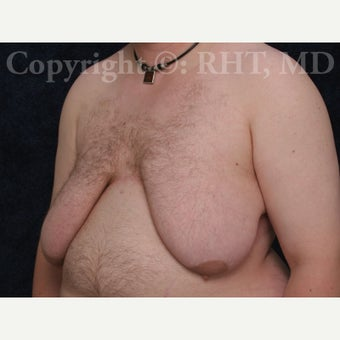 24 yo F-M transgender patient had total mastectomies and NAC grafts for Chest Masculinization 1921417