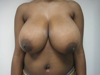 26 Year Old Female Breast Reduction/Lift before 819086