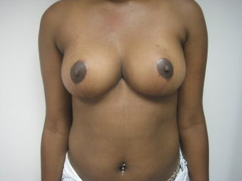 26 Year Old Female Breast Reduction/Lift after 819086
