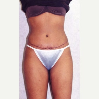 Tummy Tuck after 1888207