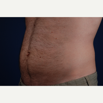 25-34 year old man treated with CoolSculpting after 3027164
