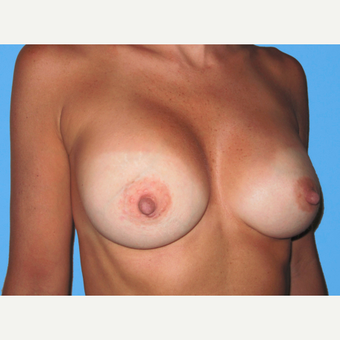 Breast Augmentation after 3731610