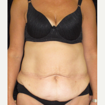 35-44 year old woman treated with Tummy Tuck before 3365396