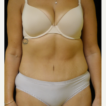 35-44 year old woman treated with Tummy Tuck after 3365396