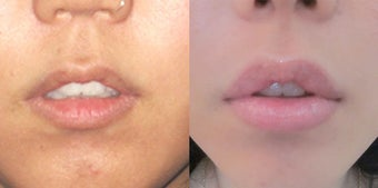 Non Surgical Lip Enhancement before 574817