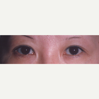 45-54 year old woman treated with Eyelid Surgery before 3544671