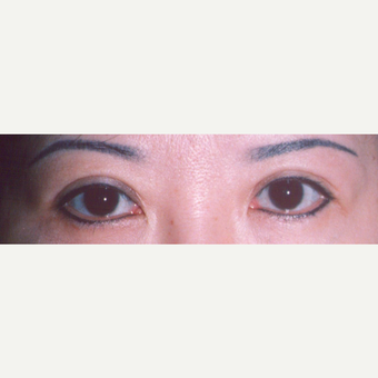 45-54 year old woman treated with Eyelid Surgery after 3544671