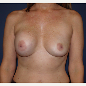 45-54 year old woman treated with Breast Implant Revision before 3287380