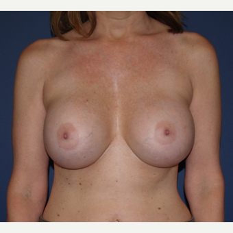 45-54 year old woman treated with Breast Implant Revision after 3287380