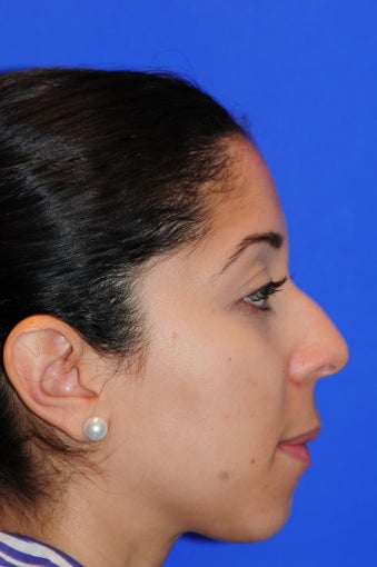25-34 year old woman treated with Rhinoplasty before 1986554