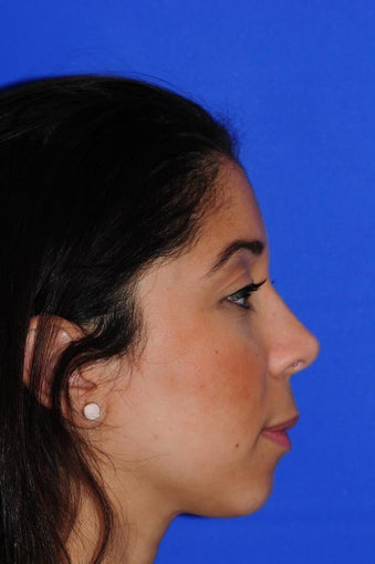 25-34 year old woman treated with Rhinoplasty after 1986554
