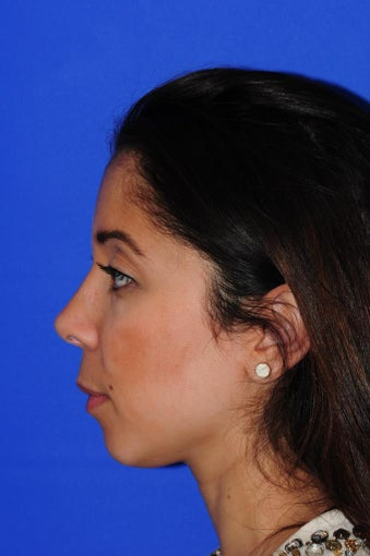 25-34 year old woman treated with Rhinoplasty 1986554