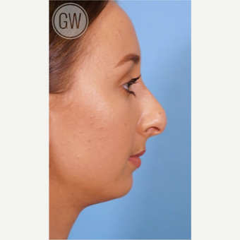 18-24 year old woman treated with Rhinoplasty before 3473410