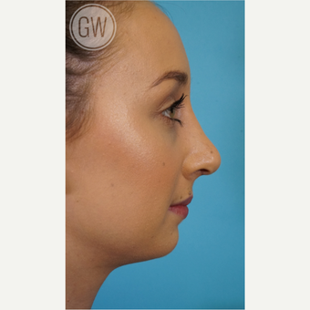 18-24 year old woman treated with Rhinoplasty after 3473410