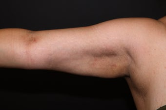 Laser Liposuction - Upper Arms after 1058467