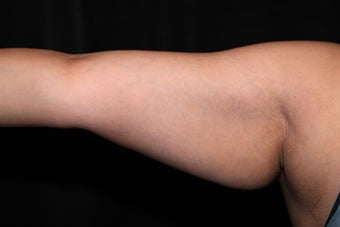 Laser Liposuction - Upper Arms before 1058467