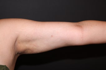 Laser Liposuction - Upper Arms 1058467