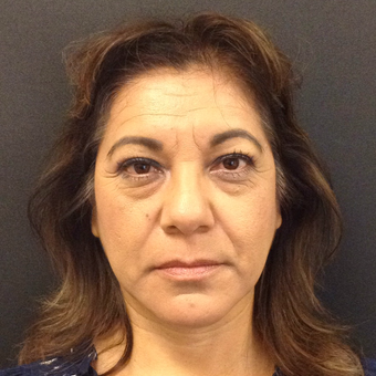 45-54 year old woman treated with Juvederm before 3731671