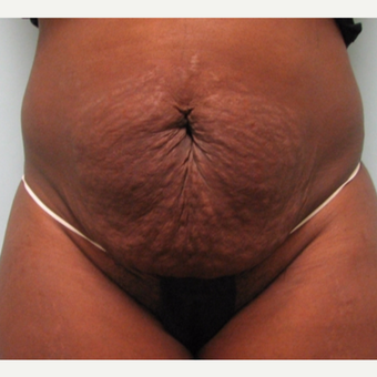 Tummy tuck performed in conjunction with hysterectomy. before 3253548