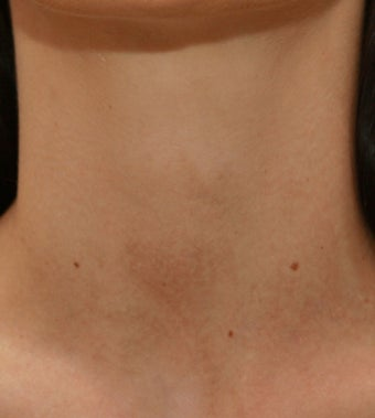 VBeam for Redness and Bruising after 138491