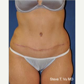 35-44 year old woman treated with Tummy Tuck after 3577990