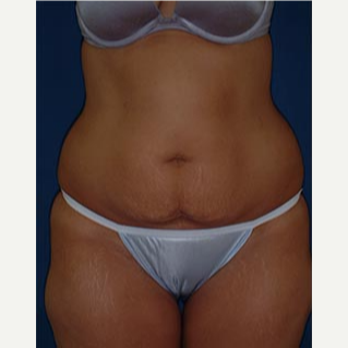 35-44 year old woman treated with Tummy Tuck before 3577990