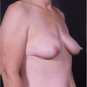 45-54 year old woman treated with Breast Implant Removal after 3546408