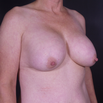 45-54 year old woman treated with Breast Implant Removal before 3546408