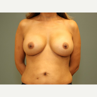 35-44 year old woman requesting Breast Implants after 3816719