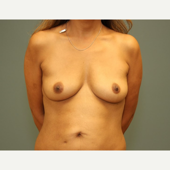 35-44 year old woman requesting Breast Implants before 3816719