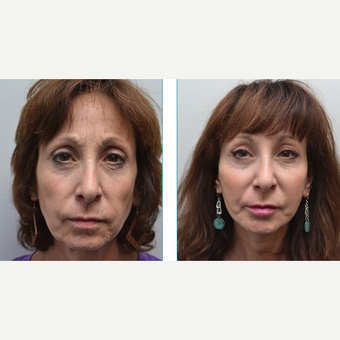 55-64 year old woman treated with Facelift before 3747553