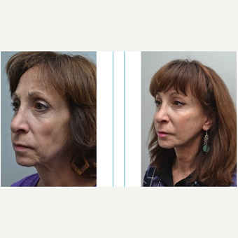 55-64 year old woman treated with Facelift after 3747553