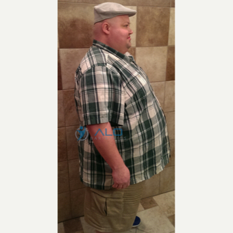 Gastric Bypass success story. ALO Bariatrics before 2480393
