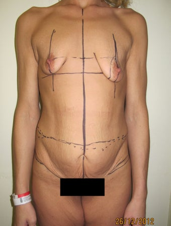 Body Lift & Breast Augmentation