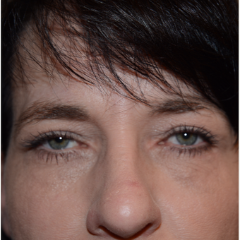 45-54 year old woman treated with Eyelid Surgery after 3294290