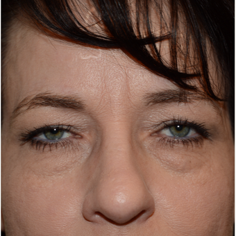 45-54 year old woman treated with Eyelid Surgery before 3294290