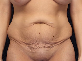 40 Year Old Woman After Gastric Bypass