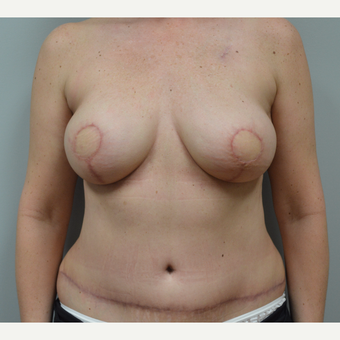 55-64 year old woman treated with Breast Reconstruction after 3162105