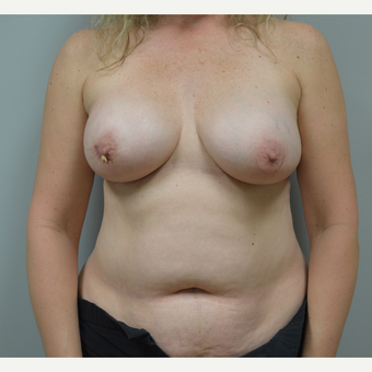 55-64 year old woman treated with Breast Reconstruction before 3162105