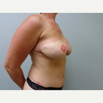35-44 year old woman treated with Breast Reconstruction 1571923