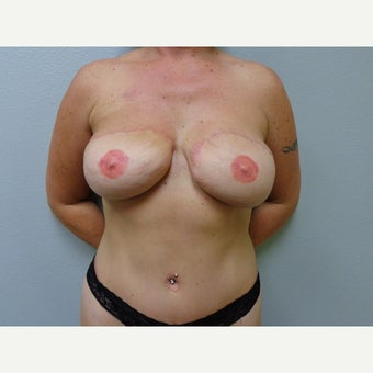 35-44 year old woman treated with Breast Reconstruction after 1571923