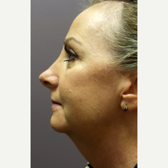 45-54 year old woman treated with Lower Face Lift & Chin Implant before 3059566