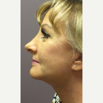 45-54 year old woman treated with Lower Face Lift & Chin Implant after 3059566