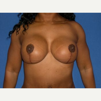 35-44 year old woman treated with Breast Lift with Implants after 3009130
