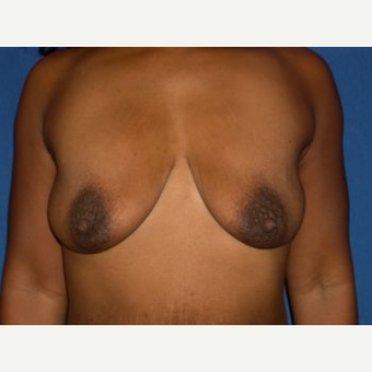 35-44 year old woman treated with Breast Lift with Implants before 3009130