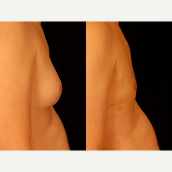35-44 year old man treated with Male Breast Reduction before 3659102