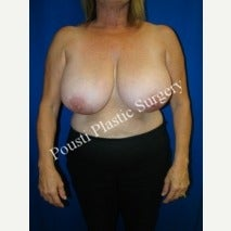55-64 year old woman treated with Breast Lift before 1569764