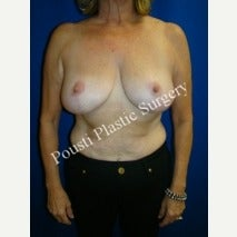 55-64 year old woman treated with Breast Lift after 1569764