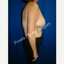 55-64 year old woman treated with Breast Lift 1569764